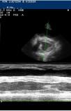 Cor pulmonale bei einer Hündin