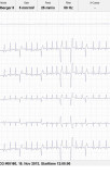 dilatative Cardiomyopathie bei einer Dogge